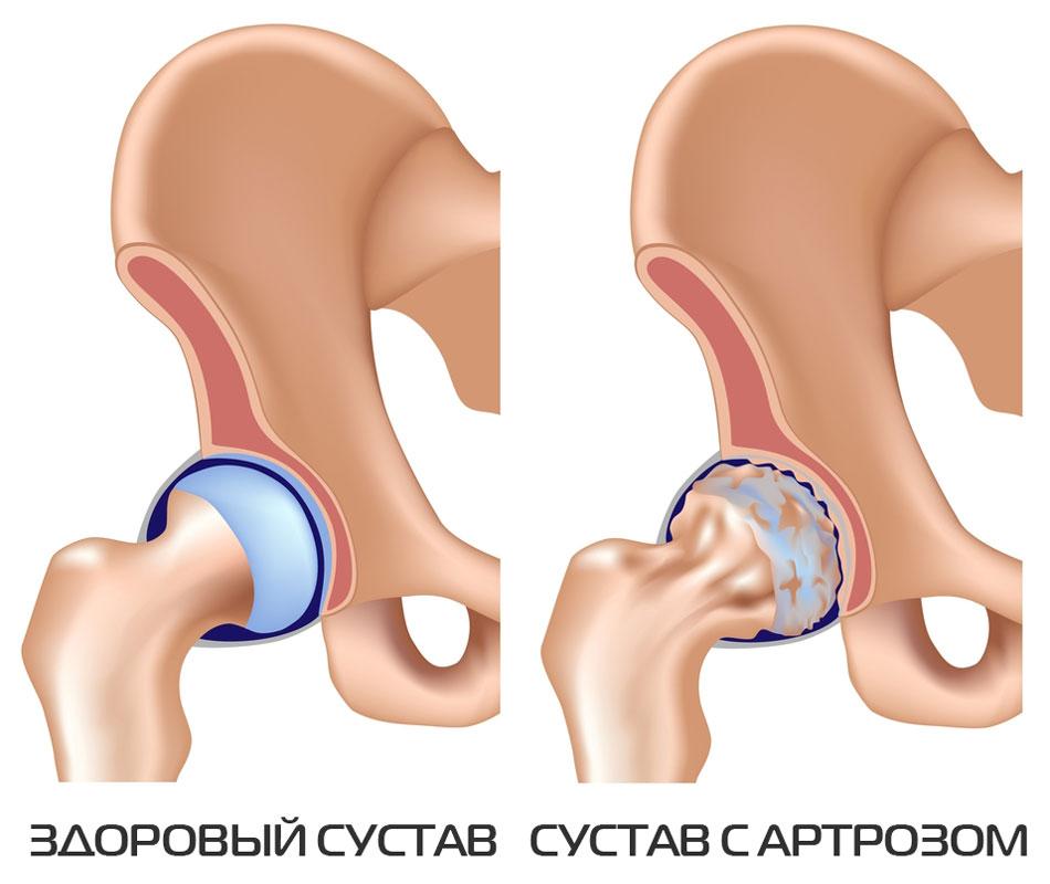Изображение - Кто делал тазобедренный сустав artroz