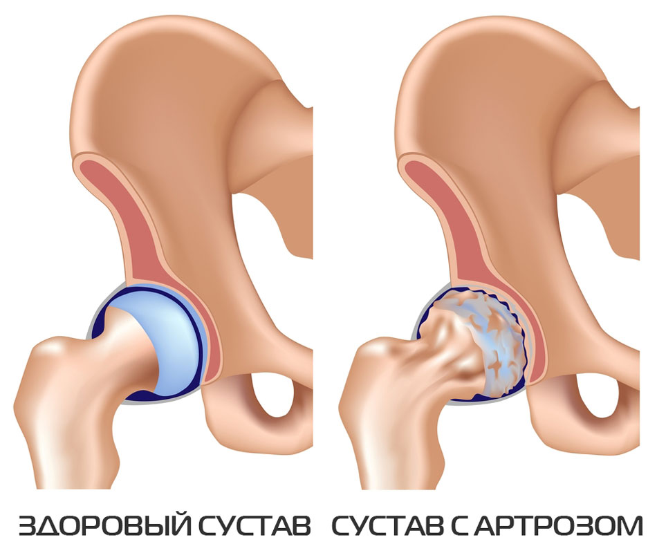 Артроз тазобедренных суставов лечить киста тазобедренного сустава
